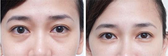 瑞蓝(玻尿酸)填充泪沟的原理   上海华美的专家解释说,注射瑞蓝(玻尿酸)填泪沟方法很简单,其治疗原则就是将凹陷处的地方填补起来,尤其对于泪沟不很严重的人效果非常好,保持时间约为4-8个月。虽然效果并非永久,但由于注射玻尿酸时间短,恢复时间短、副作用少,获得许多人的喜爱。   现在快速、安全、无痛的医学治疗方法主要是注射玻尿酸,采用玻尿酸填充去除泪沟是临床上运用@HM广泛的,注射瑞蓝(玻尿酸)改善泪沟没有副作用,安全自然,对人体也没有危害,治疗过程10-20分钟,治疗不出血不动刀。   上海华美瑞蓝(