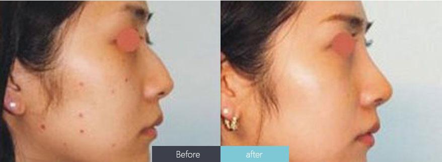 以上就是上海最好的皮肤美容医院专家对激光祛痣的