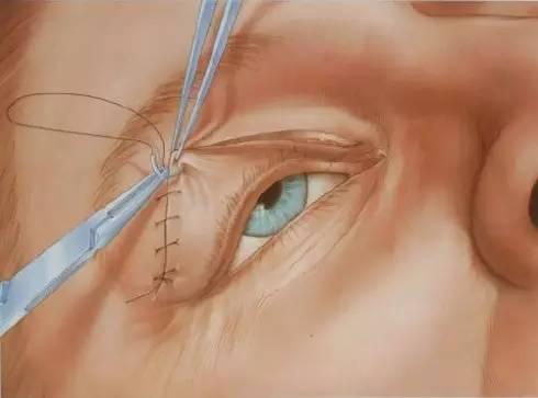 佀同帅图解切开法双眼皮手术全过程
